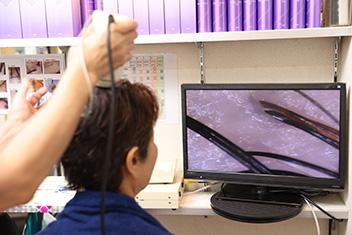 再びマイクロスコープで頭皮の状態を確認。