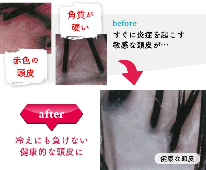 すぐに炎症を起こす敏感な頭皮が…冷えにも負けない健康的な頭皮に